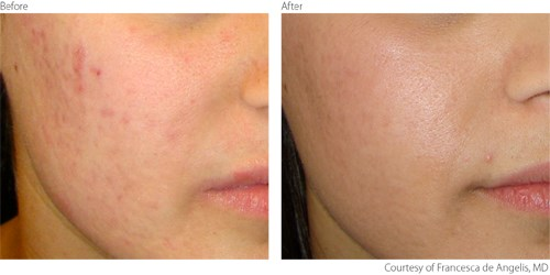 how to get rid of scars from laser hair removal