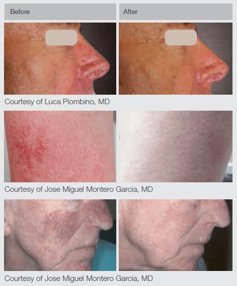Nd Yag Laser Machine For Vascular Lesions Treatment Lumenis