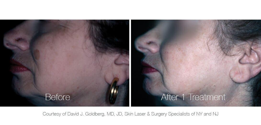 Nd:YAG Laser Tattoo & Pigmentation Removal Machine - PiQo4 | Lumenis
