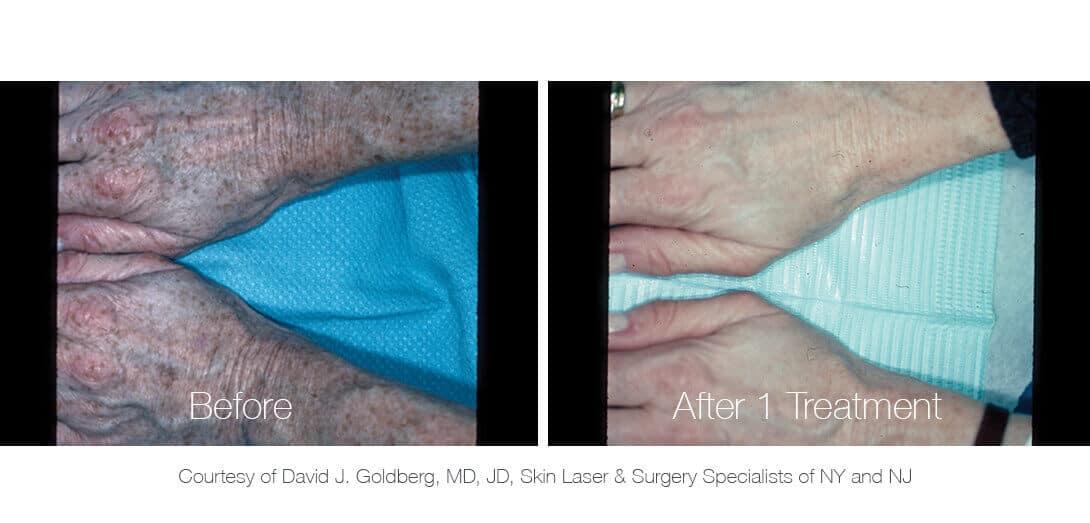 Nd:YAG Laser Tattoo & Pigmentation Removal Machine - PiQo4   Lumenis