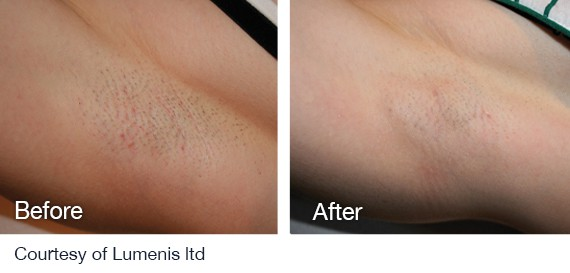 Diode Alexandrite Laser Hair Removal System For All Skin Types